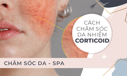 Cách chăm sóc da nhiễm Corticoid